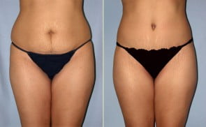 Tummy Tuck Eugene Oregon Abdominoplasty Dr Movassaghi