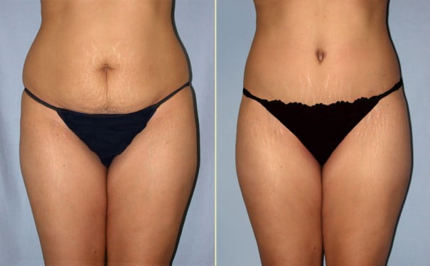 Tummy Tuck Eugene Oregon - Abdominoplasty - Dr  Movassaghi