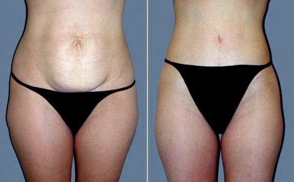 Tummy Tuck Eugene Oregon Abdominoplasty Dr Movassaghi