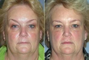 Botox & Restylane Patient 01