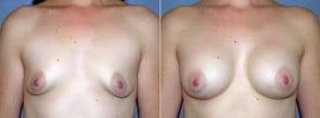 Breast Augmentation Patient 5
