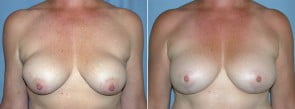Breast Implant Exchange Patient 01