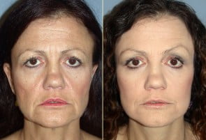 Facelift Patient 09