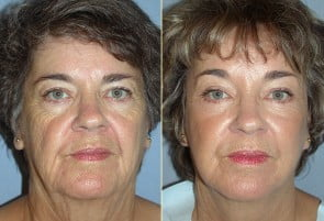 Facelift Patient 10