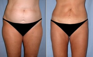 liposuction_01a