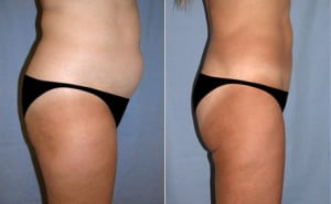 liposuction_01b