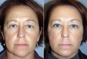 Restylane & Botox Patient 02