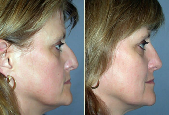 Rhinoplasty Before and After Side View 02