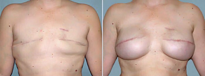 Confirm. agree Breast reconstruction surgeon