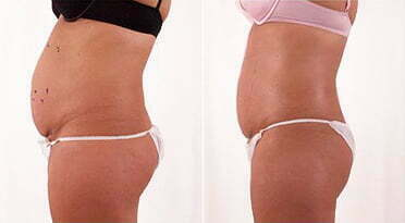 Exilis before and after photo