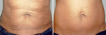 Exilis - Before & After Photo