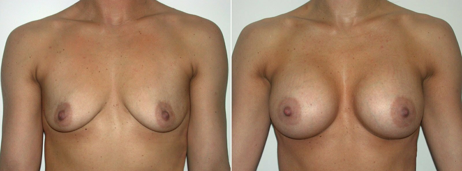Breast Cancer Reconstruction Surgery, Portland, Oregon
