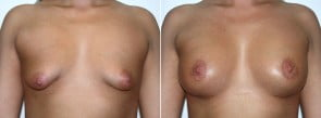 Breast Aug Patient 5