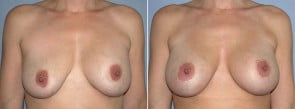 Breast Lift Patient 7