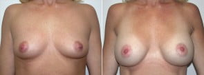 Breast Lift Patient 9