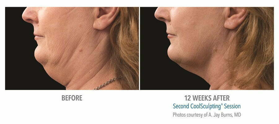 before & after coolmini chin fat reduction