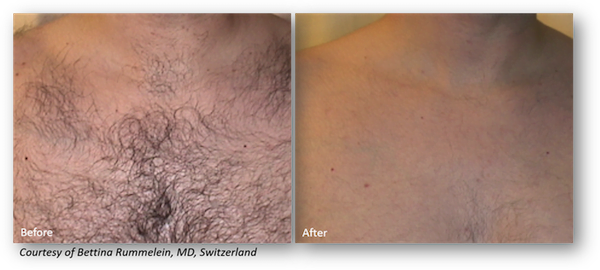 Before & after picture of laser hair removal series with Clarity
