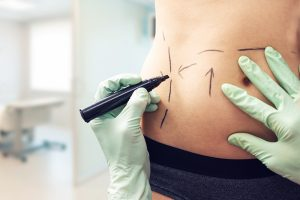 What is the Most Popular Plastic Surgery Procedure?