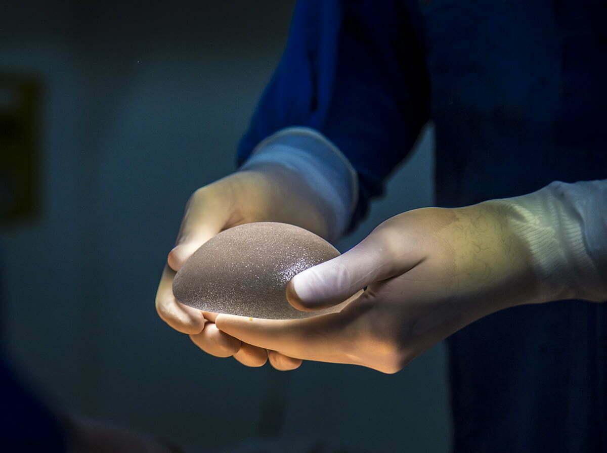 Surgeon holding textured breast implant
